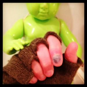smashed finger blankstareblink