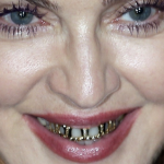 Let's Hear it for the Grillz